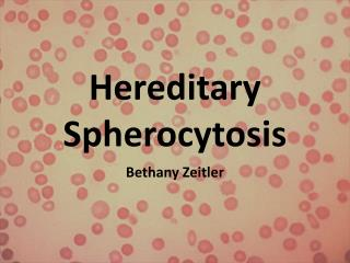 Hereditary Spherocytosis