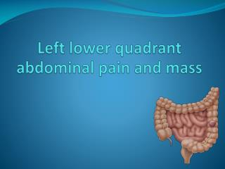 Left lower quadrant abdominal pain and mass