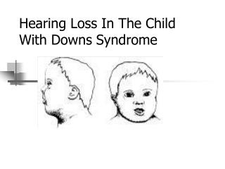 Hearing Loss In The Child With Downs Syndrome
