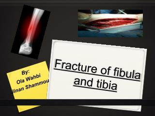 Fracture of fibula and tibia