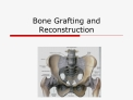 Bone Grafting and Reconstruction