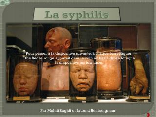 La syphilis