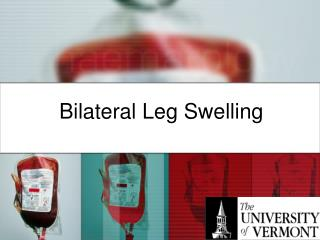 Bilateral Leg Swelling