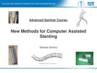 New Methods for Computer Assisted  Stenting