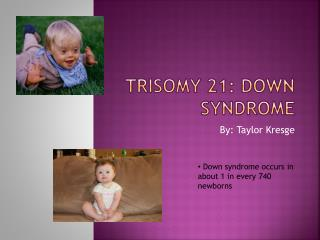 Trisomy 21: Down Syndrome