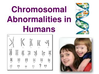 Chromosomal  Abnormalities in Humans