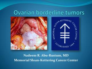 Ovarian borderline tumors