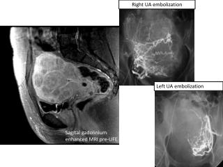 Sagital  gadolinium  enhanced MRI pre-UFE