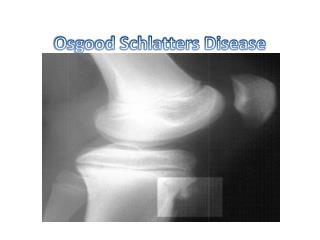 Osgood Schlatters Disease