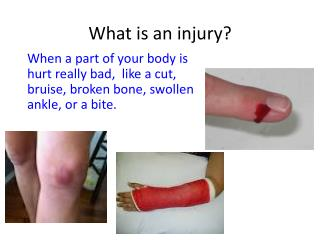 What is an injury?