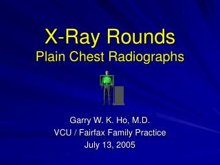 X-Ray Rounds Plain Chest Radiographs