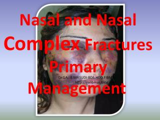 Nasal and Nasal  Complex  Fractures Primary Management