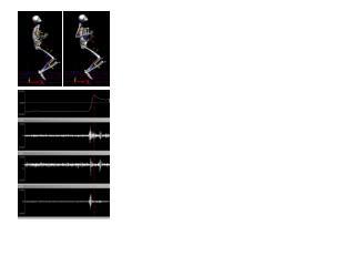C. D. E. Lumbar Flexion F. R-Erector Spinae