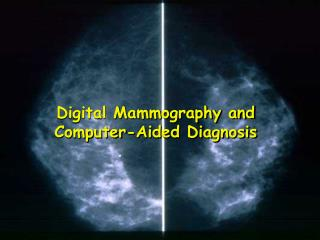 Digital Mammography and Computer-Aided Diagnosis