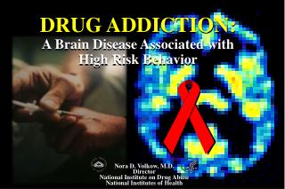 DRUG ADDICTION:  A Brain Disease Associated with  High Risk Behavior