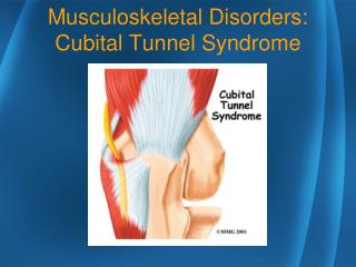 Musculoskeletal Disorders: Cubital Tunnel Syndrome