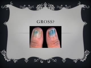 Gross?