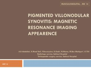 PIGMENTED VILLONODULAR SYNOVITIS: MAGNETIC RESONANCE IMAGING APPEARENCE