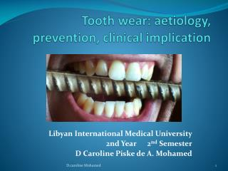 Tooth  wear:  aetiology , prevention, clinical implication