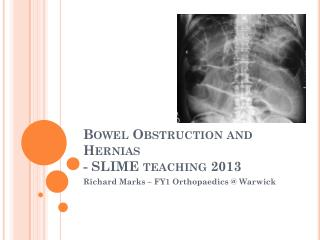 Bowel Obstruction and Hernias - SLIME teaching 2013