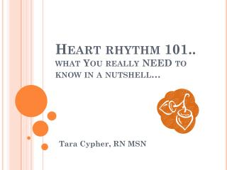 Heart rhythm 101.. what You really NEED to know in a nutshell…