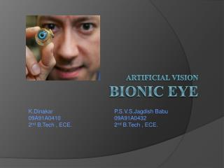 Artificial vision BIONIC  EYE