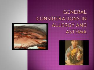 General considerations in allergy and asthma