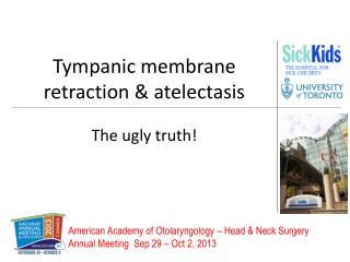 Tympanic membrane retraction & atelectasis