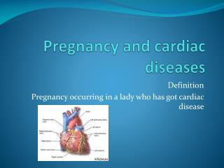 Pregnancy and cardiac diseases