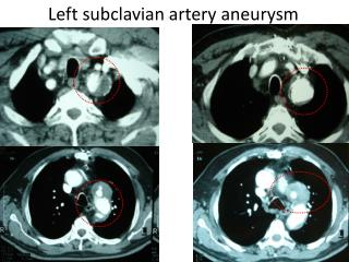 Left subclavian artery aneurysm