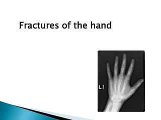Fractures of the hand