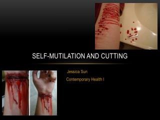 Self-Mutilation and Cutting