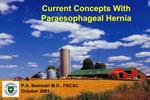 Current Concepts With Paraesophageal Hernia