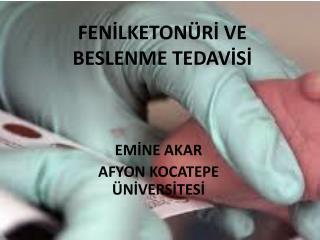 FENİLKETONÜRİ VE BESLENME TEDAVİSİ