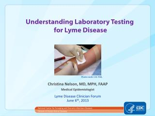 Understanding Laboratory Testing  for Lyme Disease