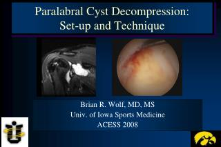 Paralabral Cyst Decompression:  Set-up and Technique