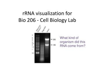 rRNA visualization for  Bio 206 - Cell Biology Lab