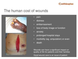 The human cost of wounds