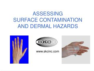 ASSESSING SURFACE CONTAMINATION AND DERMAL HAZARDS