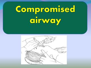 Compromised airway