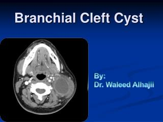 Branchial  Cleft Cyst