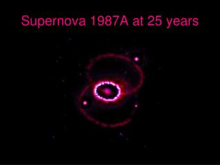Supernova 1987A at 25 years