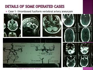 Details of some operated cases