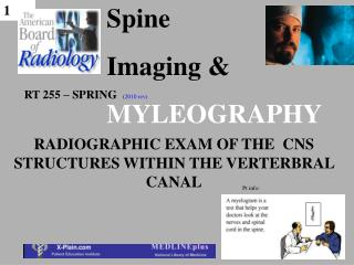 Spine  Imaging  MYLEOGRAPHY