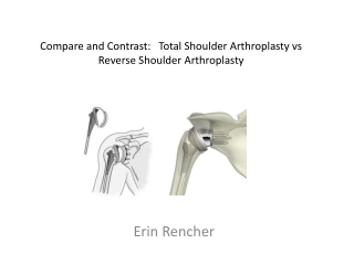 Conditions of the Shoulder, Elbow, Wrist and Hand