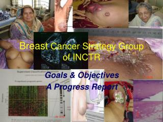 Breast Cancer Strategy Group of INCTR