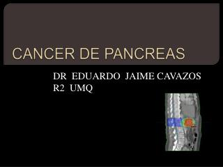 CANCER DE PANCREAS