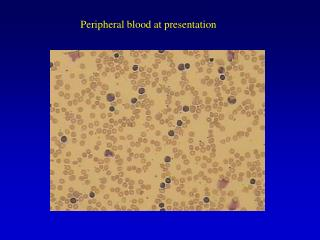 Peripheral blood at presentation