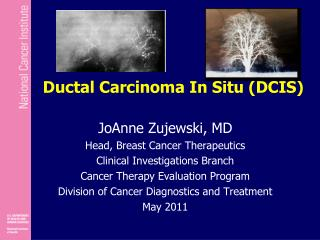 Ductal Carcinoma In Situ (DCIS)