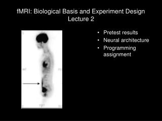 fMRI: Biological Basis and Experiment Design Lecture 2
